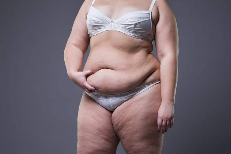 Fat Overlapping Stomach