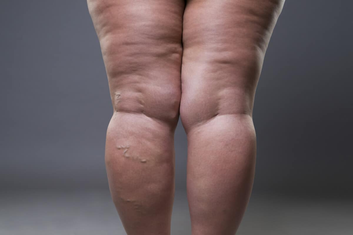 Cellulite Dimples on Legs